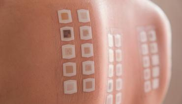 PATCH TESTING FOR ALLERGIC CONTACT DERMATITIS